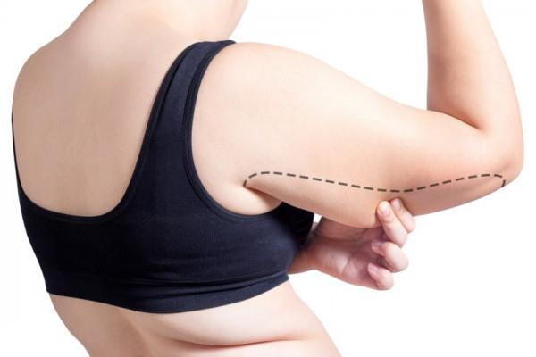 pierdeți în greutate pe skyla pierde grăsime în anumite locuri