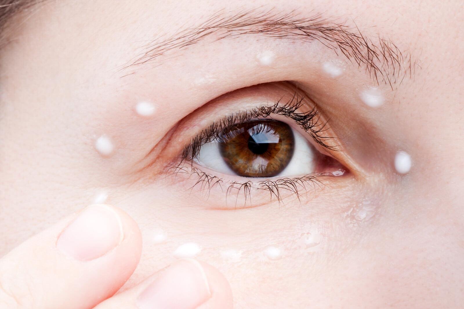 Cum să eliminați venele sub ochi: 8 moduri
