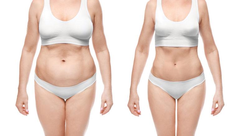 malibu pierdere în greutate boise obțineți mișcare pentru pierderea în greutate