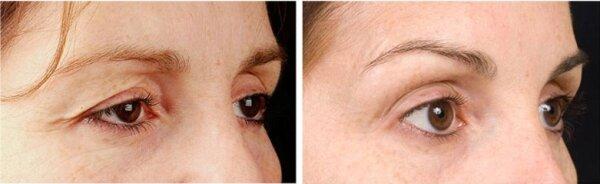 Tipuri de infecții oculare: cum le recunoști și tratezi