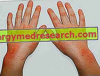 pierderea de grăsimi și eczeme