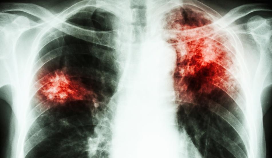 Tuberculoză - Wikipedia