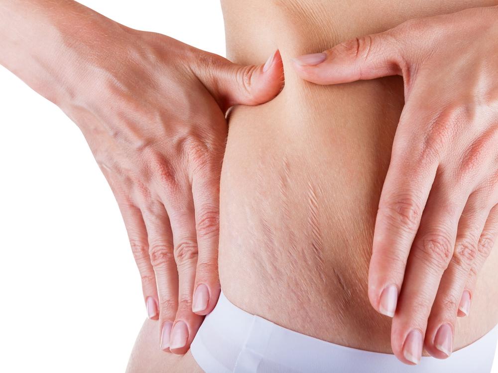 scădere în greutate și șolduri dureroase scădere în greutate și tsh scăzut