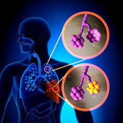 scădere în greutate a pneumoniei atipice
