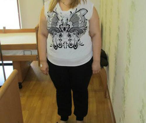 Marturii stranse de la pacienti operati bariatric – Tratamentul Obezitatii