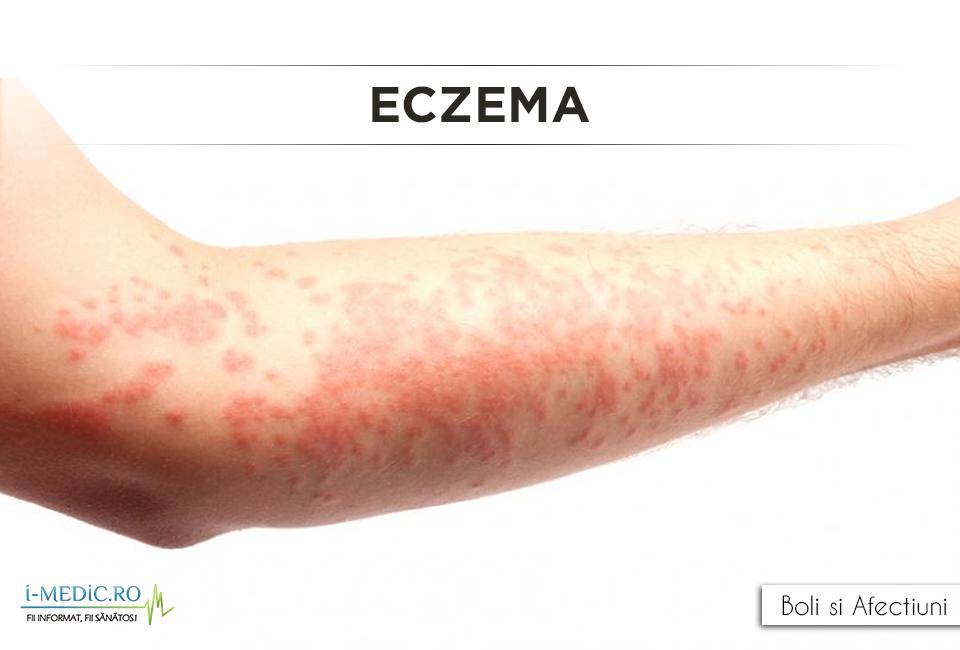 eczema de slabire tehnici de ardere a grăsimilor la domiciliu