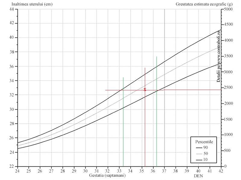 nhs sesizare pierdere in greutate frecvența pulsului pentru arderea grăsimilor