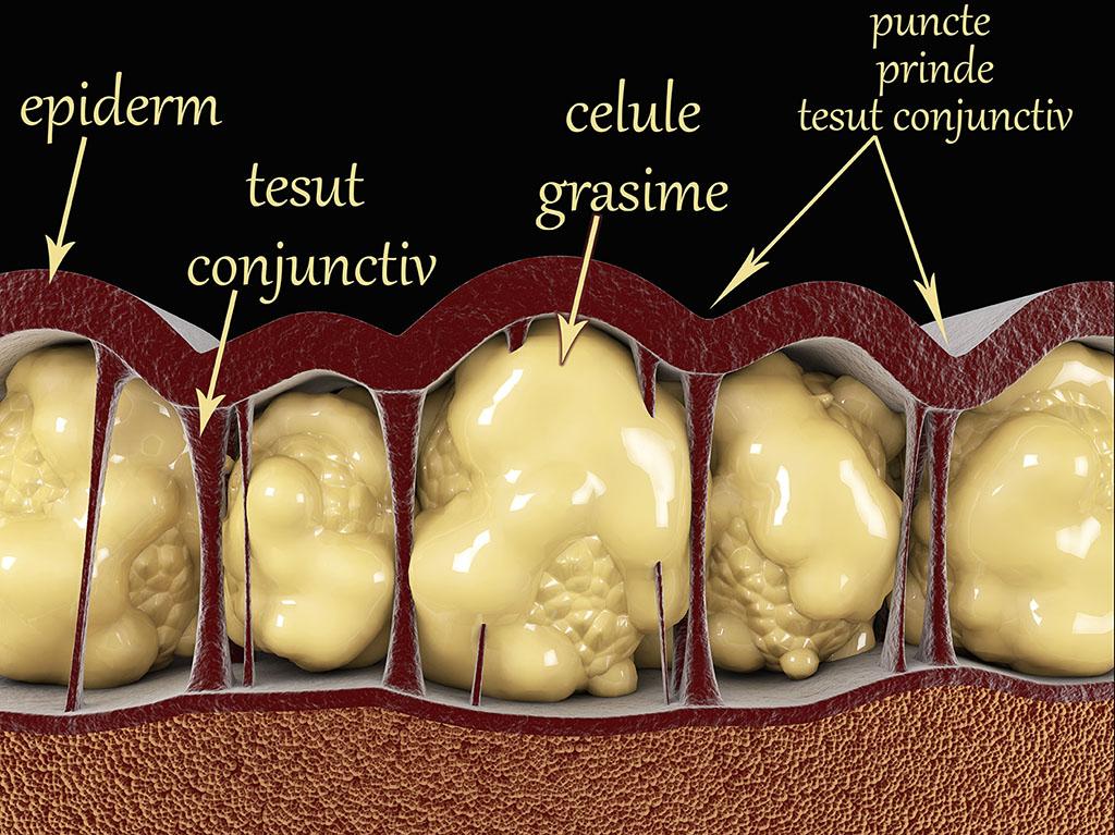 Ce se intampla cu tesutul gras atunci cand slabim | Medlife