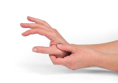Sindromul de tunel carpian (CTS)