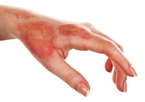 Prevenirea si tratarea arsurilor