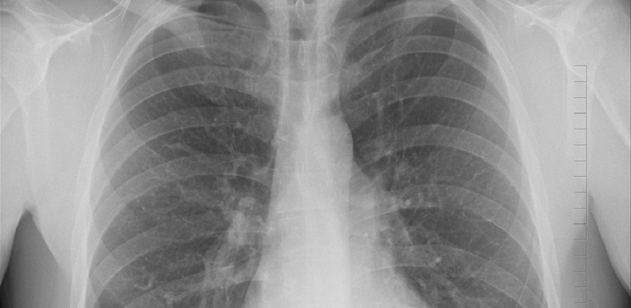 Emfizemul pulmonar, boala cauzata de fumat!
