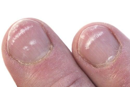 Modificări ale unghiilor