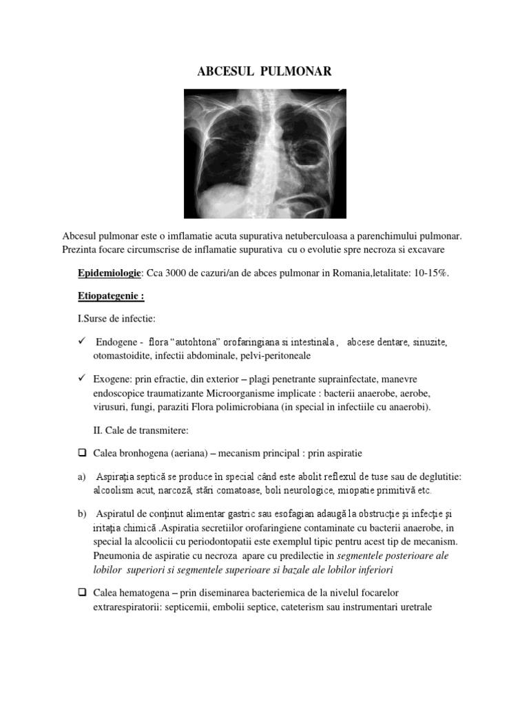 Abces pulmonar