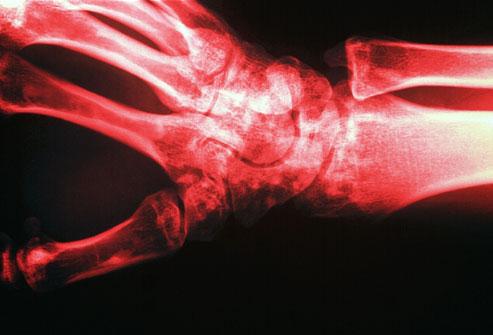 Osteoporoza, boala oaselor fragile: Simptome, tratament, dieta | Bioclinica