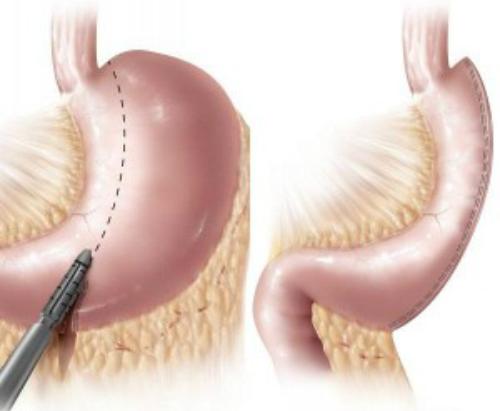 Sfaturi pentru Micsorarea stomacului