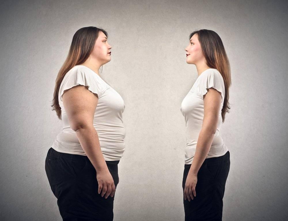 Obezitate - Wikipedia