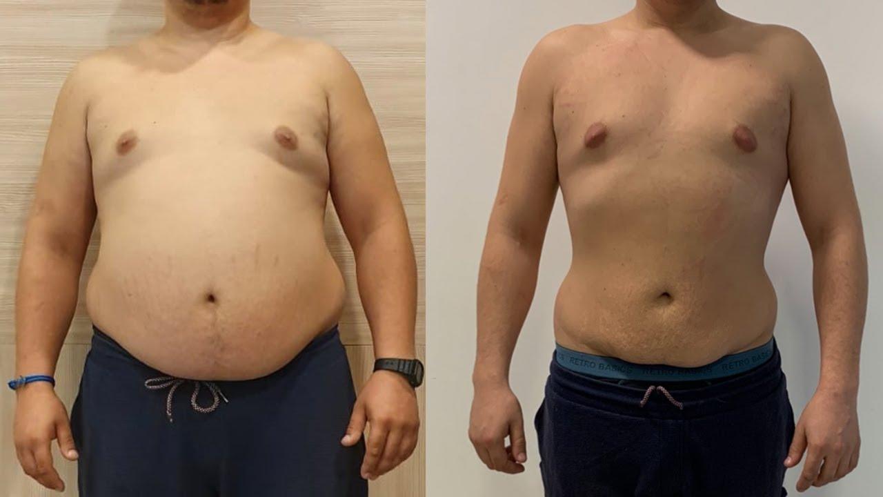 ajutor arzătoarelor de grăsime cu abs pierdere în greutate procedură non invazivă