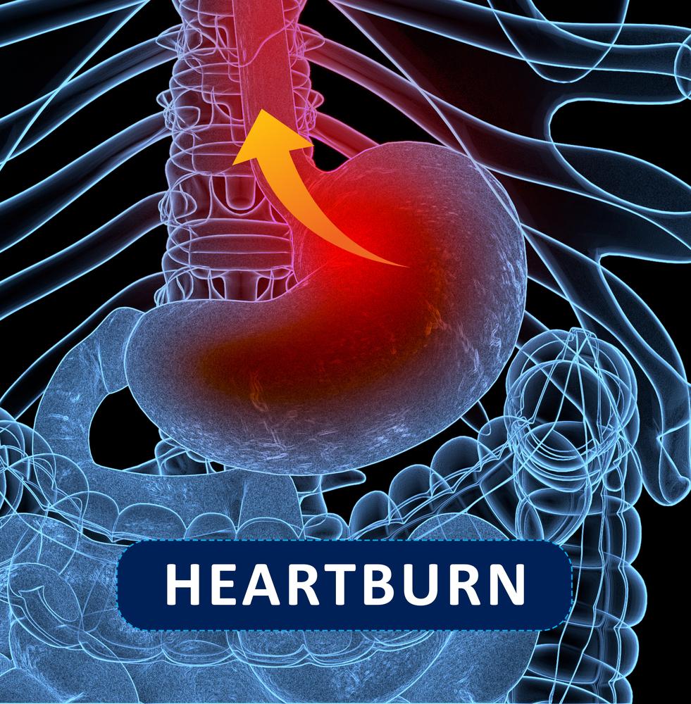 Refluxul gastroesofagian: 8 riscuri pentru sanatate