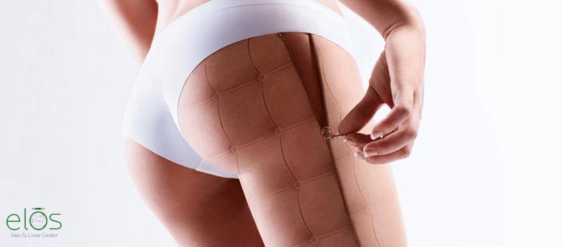 o modalitate eficientă de a scăpa de celulită - pierde in greutate rapid si gustos