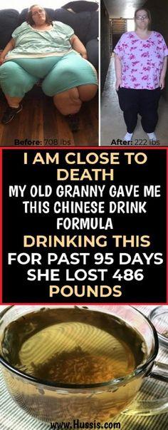 Pierde în greutate în IBS