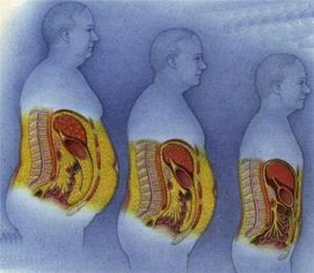 o persoană poate pierde celulele de grăsime