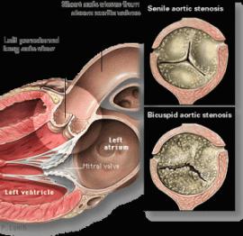 stenoză aortică de pierdere în greutate